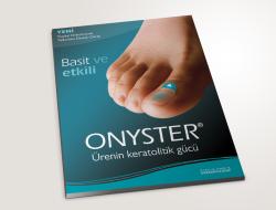 Onyster İlanı